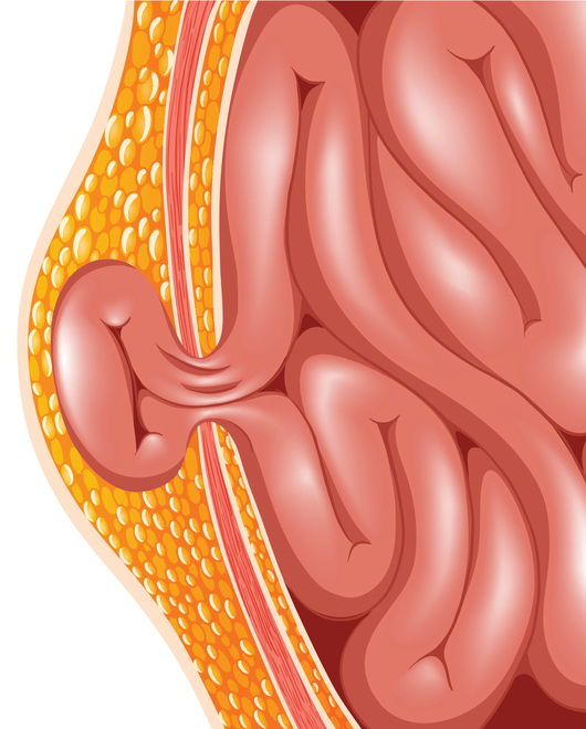 Source: Thinkstock/ blueringmedia, Hernia, IBS Symptoms, Intestinal Issues, Signs Of Hernia