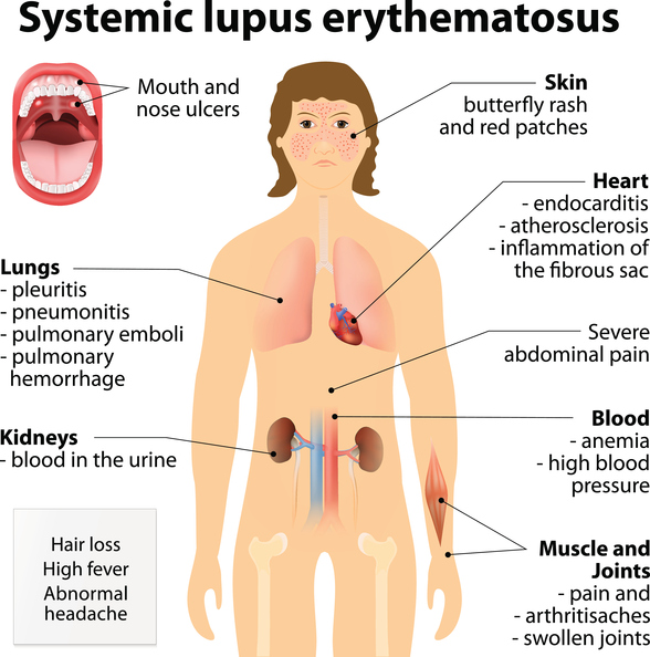 picture of lupus, lupus treatments, top 3 signs of lupus