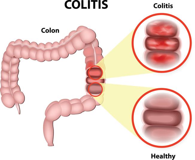 colitis symptoms, colitis treatments, colitis, colon