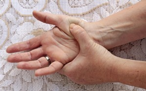 arthritis (Copy)