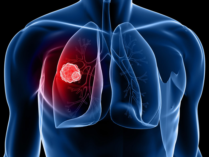 lung cancer, symptoms of lung cancer