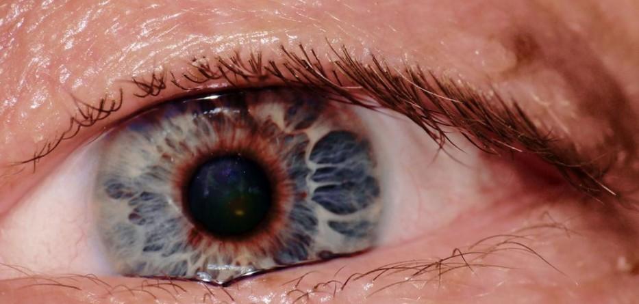 new-site-glaucoma