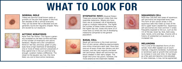 types of skin cancer, metastatic melanoma, skin cancer, stage 4 melanoma