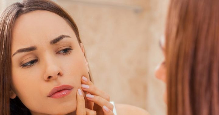 what-are-the-best-treatments-for-acne-1
