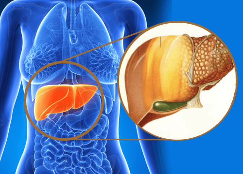 fatty liver disease, fatty liver, what is fatty liver, fatty liver causes, picture of fatty liver, fatty liver treatment