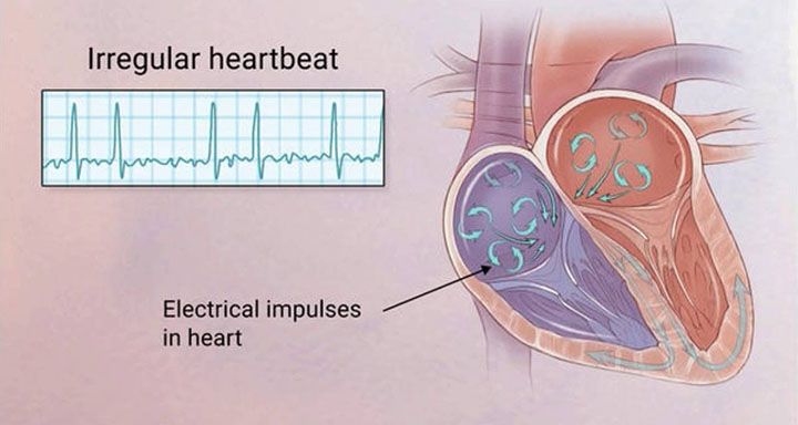 afib-everything-you-need-to-know-featured
