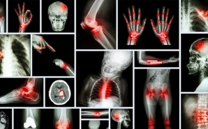 All-You-Need-to-Know-About-Arthritis-featured