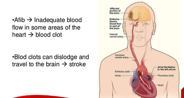 how-are-afib-and-strokes-connected-featured