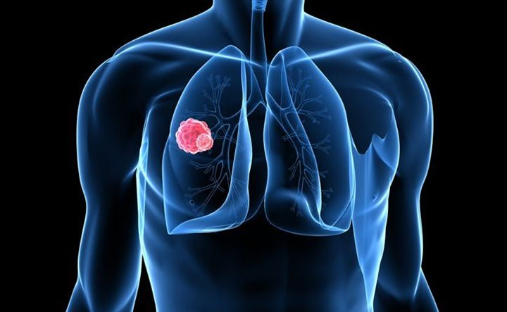 lung-cancer-treatment-options-featured