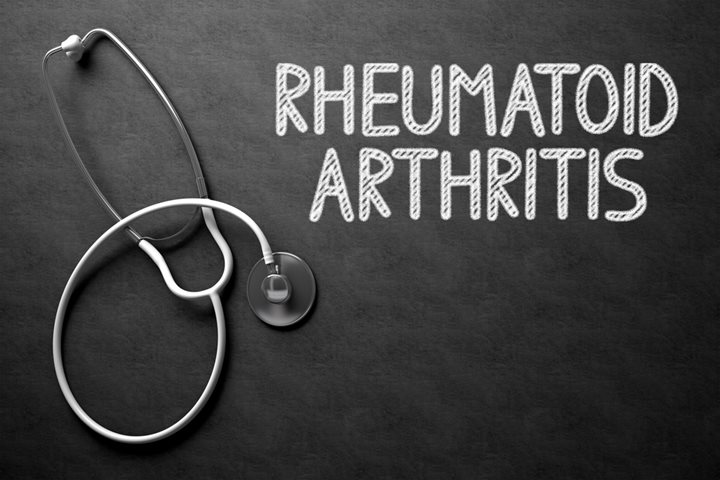 rheumatoid-arthritis-explained-featured