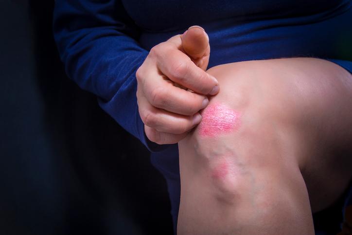 Psoriasis on knee