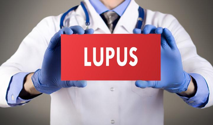 Treatment-Of-Lupus