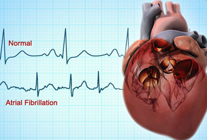 your-ultimate-guide-to-atrial-fibrillation-featured-image
