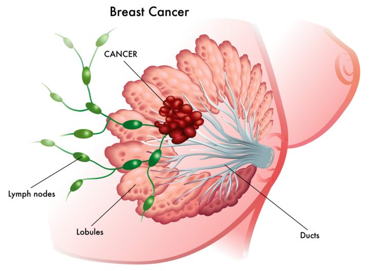 breast-cancer-stages-featured