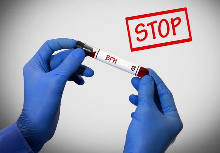 bph drugs, bph treatment, prostate exam, prostate cancer