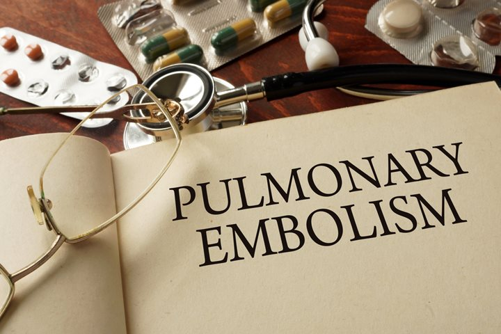 treatment pulmonary embolism, pulmonary embolism treatment, pulmonary embolism treatments, treatments for pulmonary embolism, treatment for pulmonary embolism, pulmonary embolism info