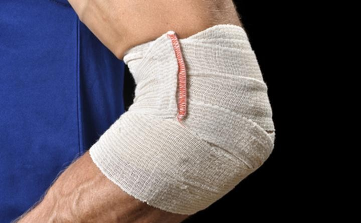 Most-Common-Sports-Injuries