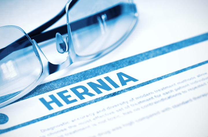 What-is-Sports-Hernia