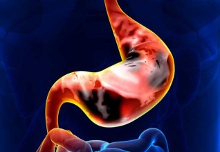 Stomach Cancer An Overview