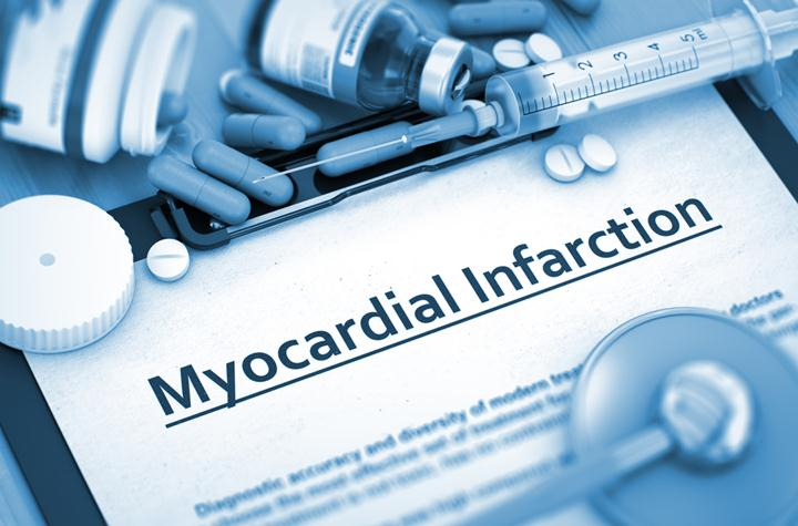 Causes of Myocardial Infarction