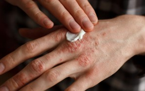 Emuaid Shingles Treatment