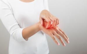 atopic dermatitis hand treatment