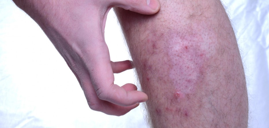 chronic atopic dermatitis treatment