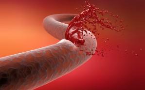 Hemophilia A Treatment