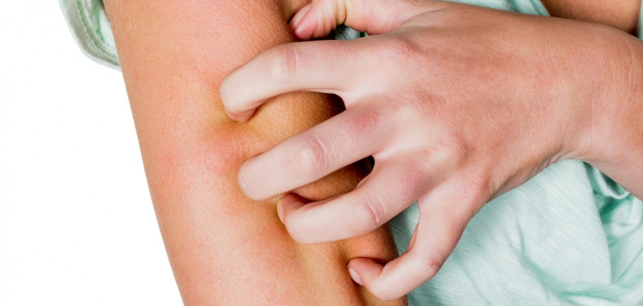 atopic dermatitis treatment options