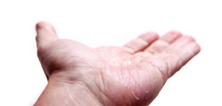 atopic dermatitis information