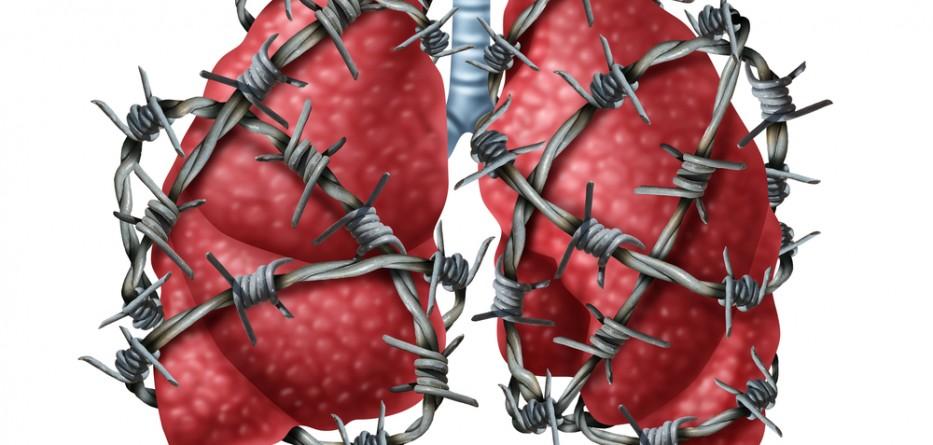 pulmonary fibrosis management