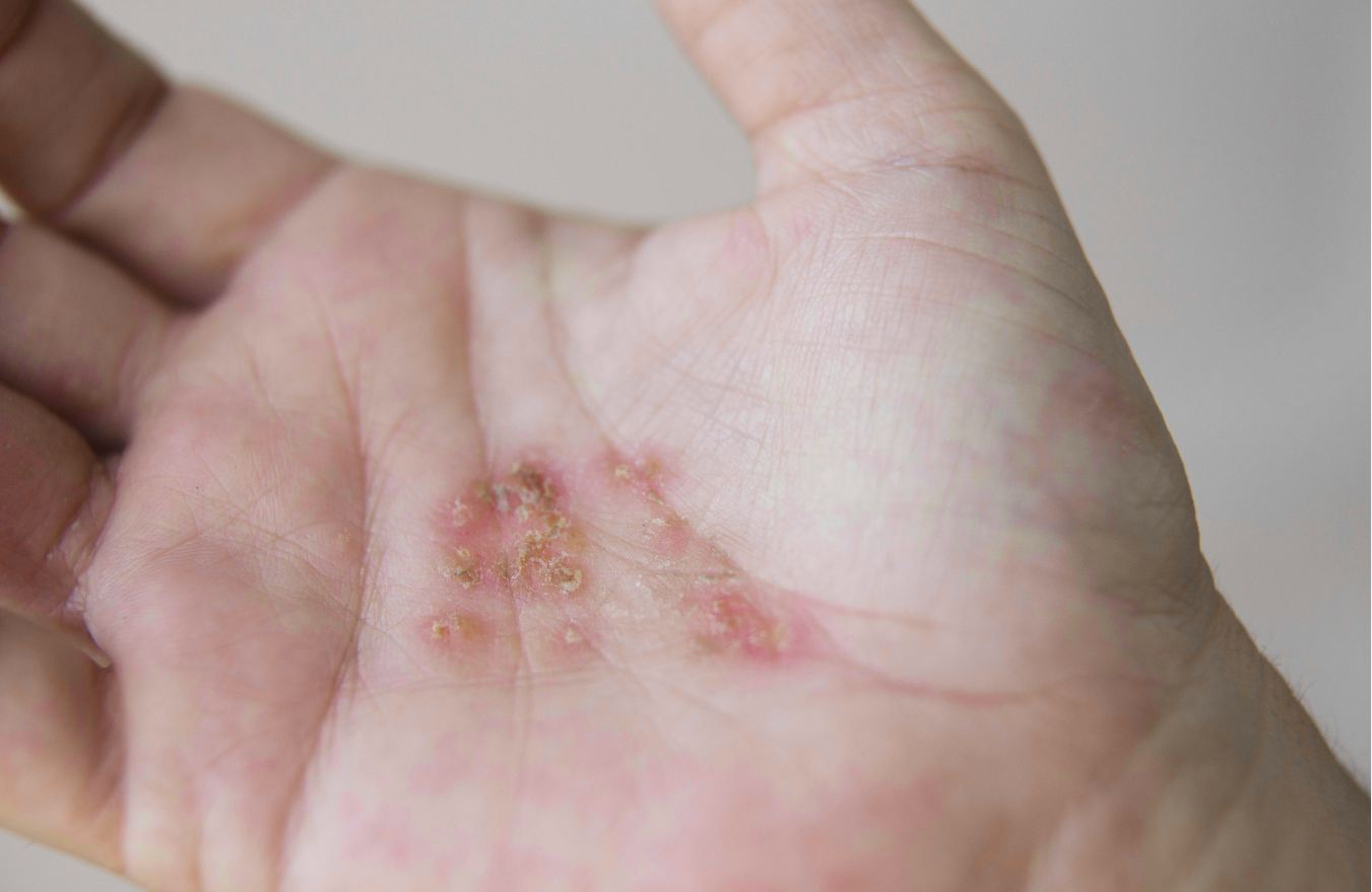 The Causes And Treatments Of Skin Rash
