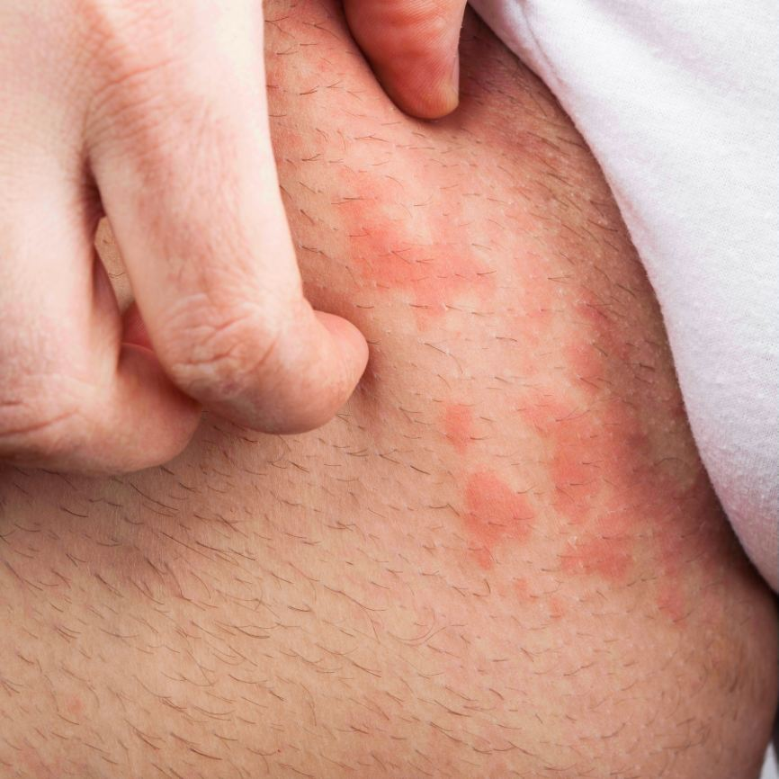 Skin Rash Diagnosis: Atopic Dermatitis(Eczema )or Psoriasis?
